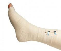 Bandaged foot image